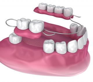 dentures pakenham