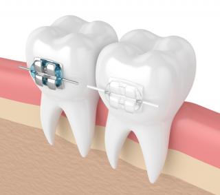 orthodontics pakenham