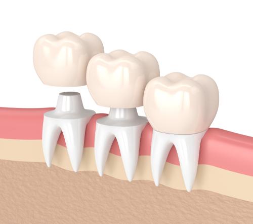 dental crown pakenham