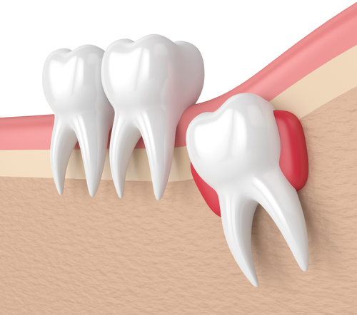 wisdom teeth removal pakenham